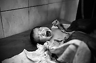 A newborn baby cries while nursing staff at the Qatar Government hospital clean her up with oil. Neonatal and child mortality rates in Pakistan are very high. The under-five-year-old mortality rate is 89 deaths per 1.000 births.  Karachi, Pakistan 2010