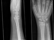 x-ray of the right hand of a 13 year old male showing a fracture of the distal radius