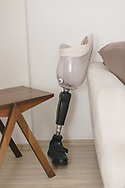 Vahide Şefkatlıoğlu's temporary prosthetic leg. Vahide's husband was killed by a military tank that injured her and left her an amputee.