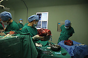 GUANGZHOU, CHINA - (CHINA OUT) <br /> <br /> 15kg Intraperitoneal Tumor Removed From 11-Year-Old Girl<br /> <br /> A surgeon holds the 15kg intraperitoneal tumor removed from Han Bingbing, an 11-year-old girl from Heilongjiang in Guangzhou, Guangdong Province of China. Han Bingbing, an 11-year-old girl from Heilongjiang, successfully received an 8-hour surgery operation to remove an intraperitoneal tumor. After 4 years, the tumor had reached a weight of 15kg and a size bigger than two footballs. As of June 18th, the tumor filled 5/6 of Bingbing's abdomen and caused her internal organs to gradually collapse. The Xukecheng Health Care Corporation raised a donation of 120 thousand RMB (19.3 thousand USD) that went towards Bingbing's surgery.<br /> ©Exclusivepix