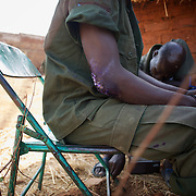 May 01, 2012 - Kauda, Nuba Mountains, South Kordofan, Sudan: Sudan People?s Liberation Movement (SPLA-N) rebel soldiers display their injures, claimed to be caused by the exposure to chemical weapons used by the Sudan's Armed Forces (SAF) during combat in the rebel-held territory of the Nuba Mountains in South Kordofan. The soldiers claim to be paralyzed for more than 10 hours after been hit by an explosion of a white smoke grenade...SPLA-North, a historical ally of SPLA, South Sudan's former rebel forces, has since last June being fighting the Sudanese Army Forces (SAF) over the right to autonomy and of the end of persecution of Nuba people by the regime of President Bashir. (Paulo Nunes dos Santos/Polaris)