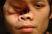 """Tong Hua Her, near Vang Vieng, Laos, June 29, 2006.  Half of Tong's face is missing from a bullet wound leaving him blind in one eye with his nasal cavity exposed.  His father and group leader, Blia Shoua Her yelled, """"Communist!  Communist do this!""""  His father says on July 15, 2003, Tong and some family were ambushed by Communist Lao troops who were on patrol...**EXCLUSIVE, no tabloids without permission**  .Pictured are a group of Hmong people who report an attack against them April 6, 2006 by Lao and Vietnamese military forces.  26 people perished, 5 were injured, and 5 babies died shortly after because their dead mothers could not breast-feed them.  Only one adult male was killed, the other 25 victims were women and children (17 children).  The Lao Spokesman for the Ministry of Foreign Affairs says this is a fabrication, an investigation has been completed, and there was no attack.  The Hmong group says no officials have interviewed witnesses or visited the crime scene, a point the Lao Spokesman did not deny.  ..The Hmong people pictured have hidden in remote mountains of Laos for more than 30 years, afraid to come out.  At least 12,000 are said to exist, with little food, scavenging in the jungle. Most have not seen the modern world.  Since 1975, under the communists, thousands of reports evidence the Hmong have suffered frequent persecution, torture, mass executions, imprisonment, and possible chemical weapons attacks.  Reports of these atrocities continue to this day.  The Lao Government generally denies the jungle people exist or that any of this is happening.  The Hmong group leader, Blia Shoua Her, says they are not part of the Hmong resistance and want peace.  He claims they are just civilians defending their families, hoping to surrender to the UN.."""