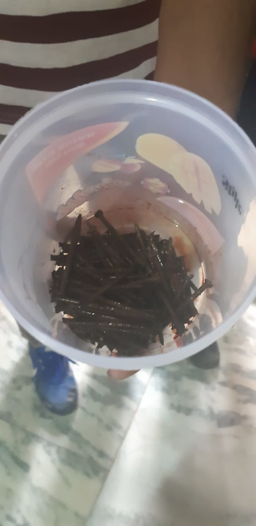 """EXCLUSIVE: By Sudipto Maity in India An Indian man complaining of stomach ache had over 100 iron nails removed from his intestine by doctors. The operation took place on Monday in the country's north west Rajasthan state. Reports said 42-year-old Bhola Shankar had reached the government hospital in Bundi town , complaining of excruciating pain. However, it was after conducting the initial tests that doctors were left baffled. X-ray of the patient showed a cluster of a rather unusual item in the man's stomach. A CT scan confirmed the suspicion. Operating on the patient, a team of surgeons, led by Dr Anil Saini, recovered and removed at least 116 iron nails. The team also shot a video of the operation, which showed nails being extracted from the intestine of the patient. Saini said, """"This is the first such case I have come across,"""" The doctor added it may be the first time something like this took place in Rajasthan. In 2017, doctors had removed at least 150 stationary pins from a patient's stomach in the same town. """"What surprised us was the length of the nails. They measured 6.5 centimetres. To have such big iron nails removed from a patient's body is unprecedented,"""" the senior doctor added. He also called it a bizarre case. Meanwhile, doctors have deemed the patient mentally imbalanced. """"The patient is not able to narrate how the nails ended up in his intestine,"""" Saini said, adding, """"He is lucky the sharp objects did not puncture his organs, else, it could have proved fatal."""" The patient's younger brother said the former has been taking medicine for mental illness for the last two and half decades. However, he too couldn't explain how the nails ended up there. Doctors believe the man was in the habit of swallowing sharp objects as apart from the nails, doctors also extracted metal wires. Despite the lengthy operation, the patient was recovering well. 13 May 2019 Pictured: Doctors removed as many as 115 iron nails from man's stomach at a state-run hospital in Bundi"""