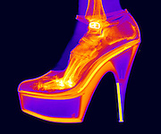 An X-ray of a foot in a High Heel Shoe.  These high heel shoes often cause foot problems