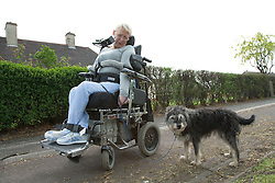Woman with Cerebral Palsy walking her pet dog,