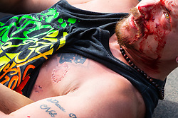 """A clear bite mark shows on the chest of a Romanian street performer who had chased down and fought an alleged pickpocket before restraining him in a leg lock. Street performers demanded that Romanian pickpockets desist from """"working"""" on the North Terrace of Trafalgar Square where they steal from crowds watching the street entertainers. London, August 02 2019."""