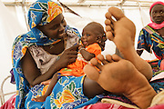 A woman plays with her baby girl, who is recovering from malnutrition, at a UNICEF-sponsored therapeutic feeding center at the Mongo hospital in the town of Mongo, Guera province, Chad on Tuesday October 16, 2012.