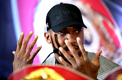 Anthony Joshua shows the scars on his hands during the press conference at Hilton London Syon Park.