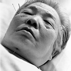 KINA. TIL ARKIV.<br /> Akupunkttur udført af læger og studernde ved Beijings største hospital.<br /> FOTO: THOMAS SØNDERGAARD.