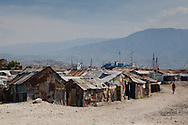 Wharf Jeremie a slum, is one of the poorest areas of Port-au-Prince has a high conentriaton of cases of cholera. The Cholera epidemic in Haiti is hard to stop due to the lack of sanitiation  coutnry wide.