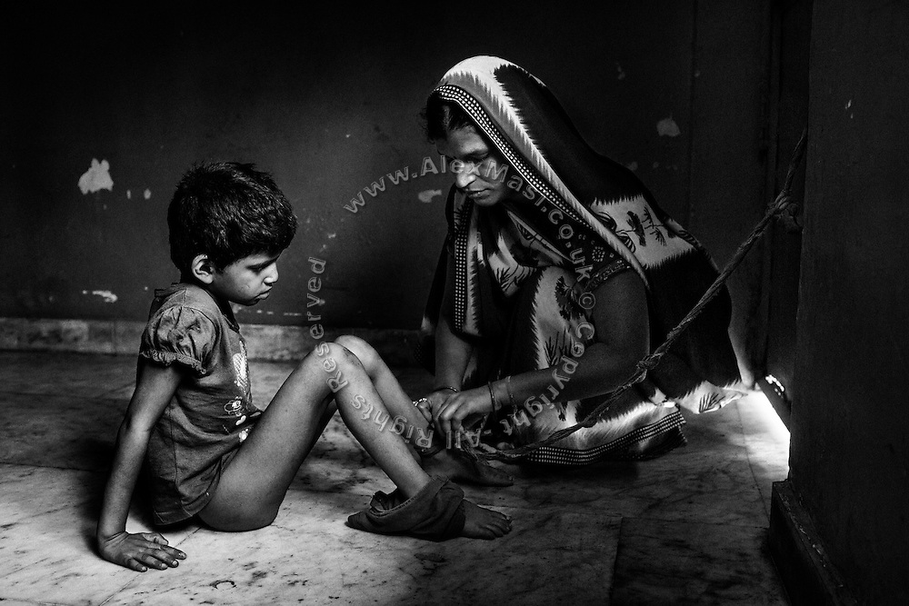 Before being dressed up, Rachi, 7, a girl affected by microcephaly and myoclonic epilepsy, is being freed of a cord to her ankle, her mother Jyoti Yadav, 34, a '1984 Gas Survivor', use to keep her from wandering off on her own, and being at risk of abuse and danger, while inside their home near Saifiya College, in Bhopal, Madhya Pradesh, central India.