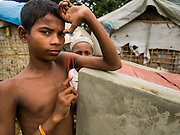 07 NOVEMBER 2014 - SITTWE, RAKHINE, MYANMAR: A Rohingya Muslim boys in an IDP camp for the Rohingya. After sectarian violence devastated Rohingya communities and left hundreds of Rohingya dead in 2012, the government of Myanmar forced more than 140,000 Rohingya Muslims who used to live in and around Sittwe, Myanmar, into squalid Internal Displaced Persons camps. The government says the Rohingya are not Burmese citizens, that they are illegal immigrants from Bangladesh. The Bangladesh government says the Rohingya are Burmese and the Rohingya insist that they have lived in Burma for generations. The camps are about 20 minutes from Sittwe but the Rohingya who live in the camps are not allowed to leave without government permission. They are not allowed to work outside the camps, they are not allowed to go to Sittwe to use the hospital, go to school or do business. The camps have no electricity. Water is delivered through community wells. There are small schools funded by NOGs in the camps and a few private clinics but medical care is costly and not reliable.   PHOTO BY JACK KURTZ