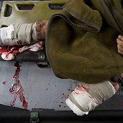 Seen in a US Army MEDEVAC helicopter are the bandaged legs of an Afghan soldier who lost his feet and part of his legs to an improvised explosive device (IED) in the Arghandab Valley in Kandahar Province, Afghanistan. IED's are one of the most common weapons used by Taliban insurgents which can be indiscrimmanate, killing and maiming both combatants and civilians..(Credit Image: © Louie Palu/The Alexia Foundation/ZUMA Press).July 21, 2010