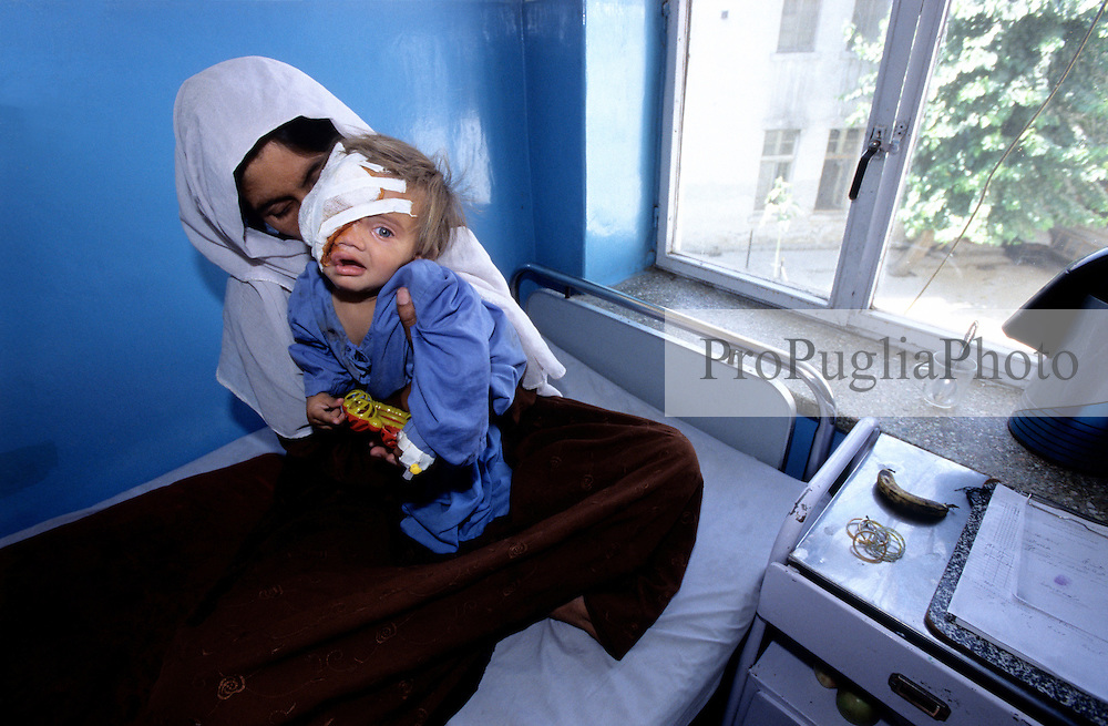 KABUL 17 August 2005..Maiwand Hospital....Shabana in the recovery room with her mother...The previous day she underwent a four-hour plastic surgery operation. ..She will be dismissed in two days, Friday the 19th.....Shabana. a nine months  old Afghan girl, has been diagnosed with a 'neurofibroma'. This is a tumor or growth located along a nerve or nervous tissue. It is an inherited disorder. If left unchecked, a neurofibroma can cause severe nerve damage leading to loss of function to the area stimulated by that nerve.....The Rehabilitative Surgery Unit (RSU) at Maiwand Hospital is fully supported by the French NGO Medical Refresher Courses for Afghans (MRCA), also by the French Minister of Foreign Affairs, and by the Embassy of Japan under the Grant Assistance for Grassroots Project (GAGP). The Italian NGO Operation Smile Italia Onlus provides training to the Doctors. ....Maiwand Hospital dates back to the rein of Nadir Shah in the 1930s.