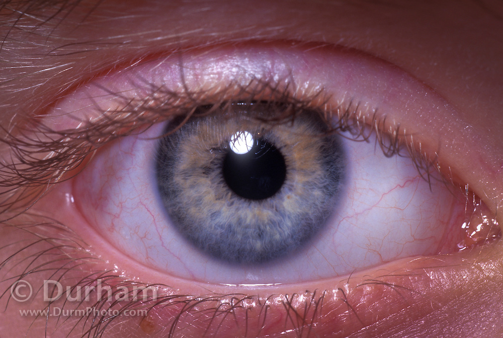 Detail of a human eye, 9-year old male.  (released JC - 1201)