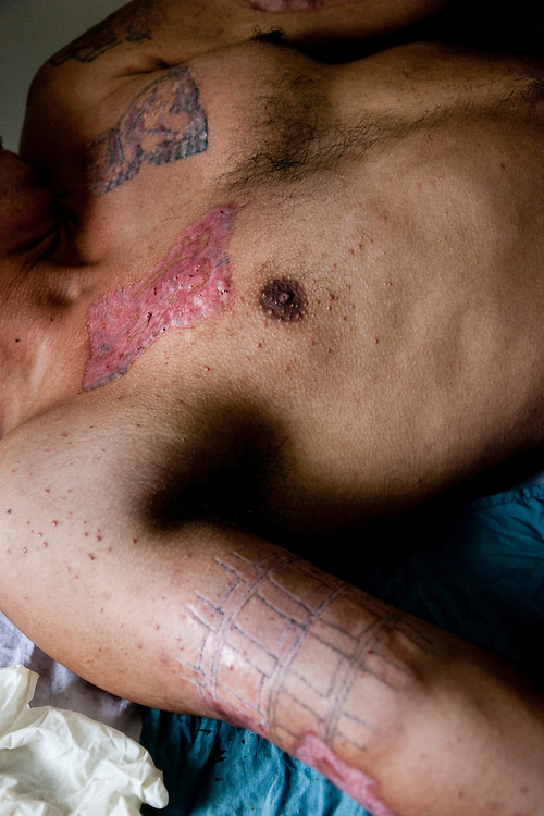 An ex gang member after having one of his tattoos removed with a crude technique that leave massive scars. USAID has a laser tattoo removal machine, but the it currently is not being used for unknown reasons leaving tattoed gang members with little chance to start a new life.