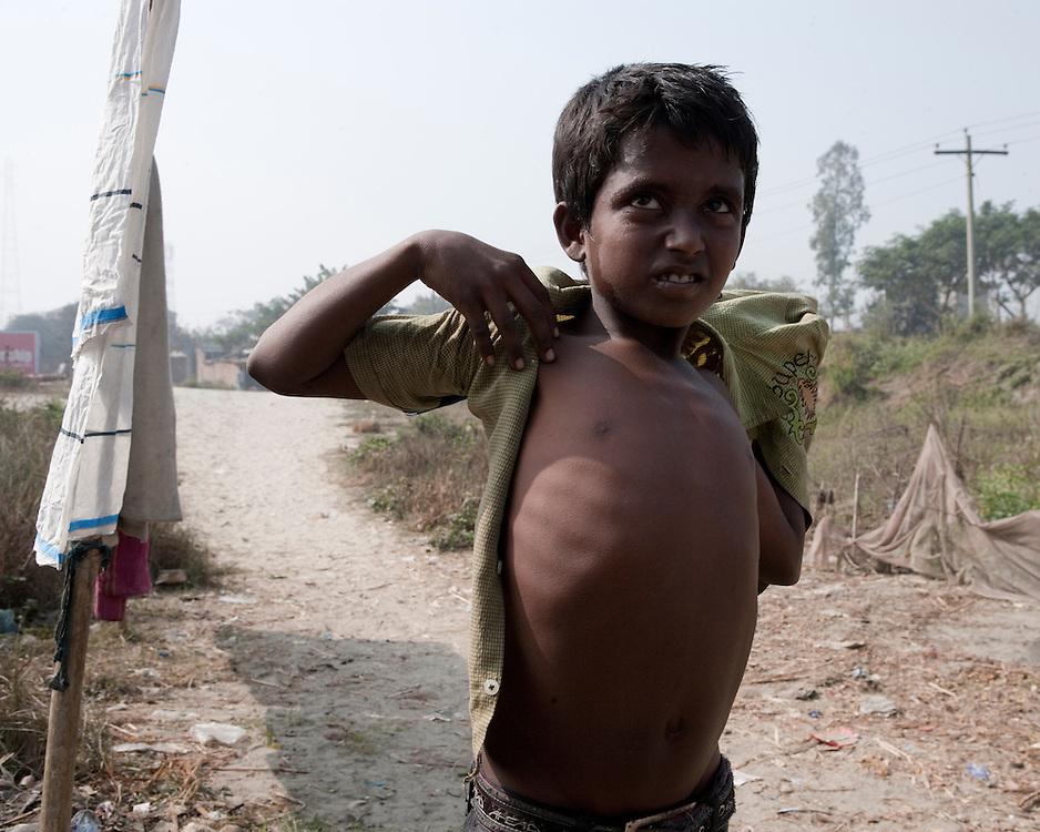 Boy in a slum putting a shirt on