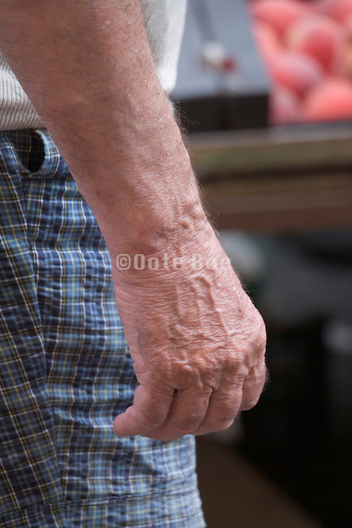 hand and arm of an elderly person