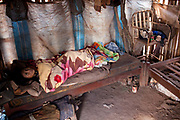 Sick ill elderley old Guarani woman lying in bed in a basic and unclean hut, looking upset and anxious. The Guarani are one of the most populous indigenous populations in Brazil, but with the least amount of land. They mostly live in the State of Mato Grosso do Sul and Mato Grosso. Their tradtional way of life and ancestral land is increasingly at risk from large scale agribusiness and agriculture. There have been recorded cases and allegations of violence between owners of large farms and the Guarani communities in this region.