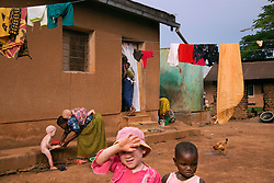 A child with albinism blocks her eyes from the sun while families go about their daily life in the dormitory section of the Kabanga Protectorate Center and School in Tanzania. Albinism can affect the eyes in multiple ways, and individuals with albinism can vary significantly in how much their eyes and vision are affected, with many being legally blind.
