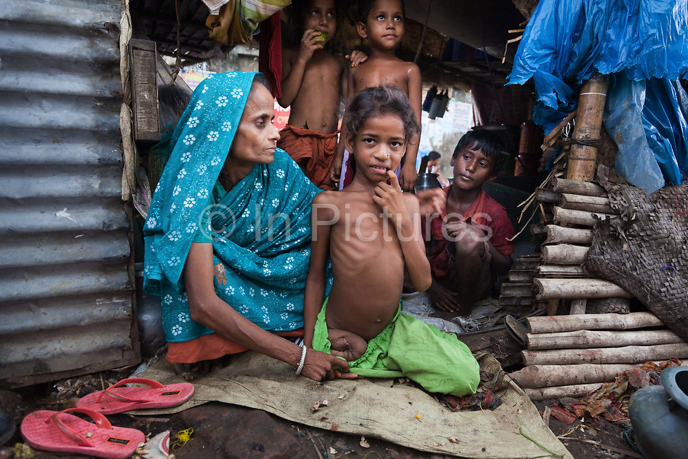 Dhaka, Bangladesh. Mahmuda with her mother. They live in a shack next to the rail tracks in Tejgaon. Mahmuda is 9 years old and lost a leg i 2008 in a train accident. She had a train accident previously which damaged her hearing and when she did not hear the train coming when she was playing on the tracks. The mother called Zoynal, a counsellor from DSID for help and he took the severely injured Mahmuda to the hospital. Without this Mahmuda would have been dead since the ambulance service in Dhaka is over stretched and would never have made it to the slum in time. CSID now provide her with a wheel chair, counselling and she is attending pre-school.The Stars Foundation visiting CSID.<br /> Centre for Services and Information on Disability (CSID) is a charity working for intergrating disabled children into mainstream society. disabled children into mainstream society.