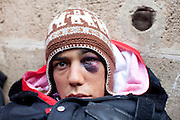 Tunis, Tunisia. January 26th 2011.One of the young protesters after violent clashes with the police near the Casbah..He is one of those who spent two nights (in defiance of a curfew) in front of the Prime Minister's office (Mohammed Ghannouchi) on the Kasbah Square. They demand the removal of Mohammed Ghannouchi and members of the ousted president's regime (Zine El Abidine Ben Ali) still in the the government. .....