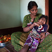 CAPTION: Geetha's daughter Priyanka tends to vomit up what she is fed, and Geetha had to experiment a lot to find ways to feed her so that this doesn't happen. Priyanka also goes through regular periods of almost non-stop crying. During the earliest days following the birth of a child who has (or develops) a disability or special needs, parents often struggle to work out what they can do for him or her, and would find more information and direction useful. Under the Chamkol programme, children aged between zero and five and their mothers, expectant mothers and women of child-bearing age will be able to get this through health, wellbeing, development and pre-school programmes run through Early Years' Clubs. LOCATION: Mallianpura (village), Kasaba (hobli), Chamrajnagar (district), Karnataka (state), India. INDIVIDUAL(S) PHOTOGRAPHED: Geetha (mother) and Priyanka (daughter).