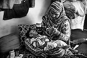 Shazia, 24, is administering medicines to her daughter Humera, 2, a girl affected by a severe neurological disorder, while sitting on a bed inside their home in Nawab, one of the water-affected colonies in Bhopal, Madhya Pradesh, central India, near the abandoned Union Carbide (now DOW Chemical) industrial complex. All four grandparents of Humera are '1984 Gas Survivors', and her parents have been drinking contaminated underground water until 2011, when the local government started to provide regular pipelines to parts of this colony.
