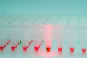 Enzyme-Linked Immunosorbent Assay in a 96 well plate