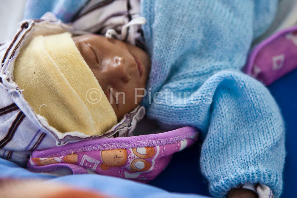 A very sick Nepalese baby lies on a hospital bed on a ward in the Friends of Needy Children Nutritional Rehabilitation Centre, Kathmandu, Nepal.  The child is 8 months old, but extremely small due to chronic malnutrition.  He arrived in the centre 4 days ago and weighed 3.1kg.  He is undergoing an intensive nutrition program and has already gained 0.6kg.  Malnutrition prevents normal  growth and development.
