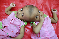July 29, 2017 - Dhaka, Bangladesh - The Bangladeshi conjoined identical twin daughters Rabeya and Rokeya lay on hospital bed in Dhaka. The twins were born joined at the head in Bangladesh, might receive a complex separation surgery. (Credit Image: © Suvra Kanti Das via ZUMA Wire)