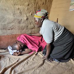 HIV and AIDS, Malawi