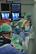 Medical staff during an operation in an operating theatre. Photographed in Israel, Haifa, Rambam Medical Centre
