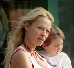 Pamela Anderson March 2002 diagnosed with Hepatitis C after sharing a  tatoo needle with Tommy Lee has to undergo treatment at UCLA Medical Center in Los Angeles.