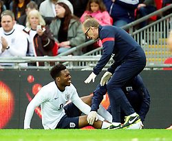 29.05.2013, Wembley Stadion, London, ENG, Testspiel, England vs Irland, im Bild England's Daniel Sturridge is treated for an injury during during International Friendly Match between England and Republic of Ireland at the Wembley Stadium, London, United Kingdom on 2013/05/29. EXPA Pictures © 2013, PhotoCredit: EXPA/ Propagandaphoto/ David Rawcliffe<br /> <br /> ***** ATTENTION - OUT OF ENG, GBR, UK *****