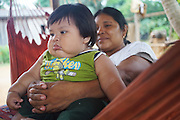 Obese Surui baby boy, fed on fatty diet, with his mother on hammock<br /><br />An Amazonian tribal chief Almir Narayamogo, leader of 1350 Surui Indians in Rondônia, near Cacaol, Brazil, with a $100,000 bounty on his head, is fighting for the survival of his people and their forest, and using the world's modern hi-tech tools; computers, smartphones, Google Earth and digital forestry surveillance. So far their fight has been very effective, leading to a most promising and novel result. In 2013, Almir Narayamogo, led his people to be the first and unique indigenous tribe in the world to manage their own REDD+ carbon project and sell carbon credits to the industrial world. By marketing the CO2 capacity of 250 000 hectares of their virgin forest, the forty year old Surui, has ensured the preservation, as well as a future of his community. <br /><br />In 2009, the four clans and 25 Surui villages voted in favour of a total moratorium on logging and the carbon credits project. <br /><br />They still face deforestation problems, such as illegal logging, and gold mining which causes pollution of their river systems