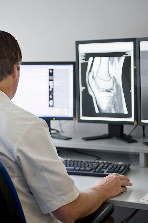 Nederland Rotterdam  25-08-2009 20090825 Foto: David Rozing .Serie over zorgsector, Ikazia Ziekenhuis Rotterdam. Afdeling radiologie, radioloog beoordeelt rontgenfoto's op eventuele afwijkingen ziektebeelden.Op foto is een gewricht, de knie, bot botten te zien. Department radiology, radiologist examens x ray x-ray images for abnormalities syndrome deseases on x ray: bone bones joint knee.Foto: David Rozing ..Holland, The Netherlands, dutch, Pays Bas, Europe,medical science,ziektekosten,zorgverleners,zorgverlening