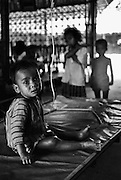 Malnourished boy in Khmer Rouge refugee camp on the Thai-Cambodian border. Nearly half the population of Cambodia was murdered under Pol Pot's Khmer Rouge regime.
