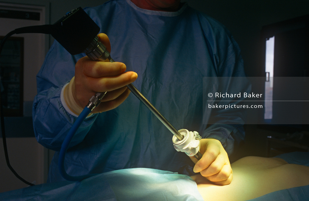 A surgeon performs 1990s keyhole surgery during surgery at a private (now defunct) healthcare hospital, on 20th May 1994, in Glasgow, Scotland.