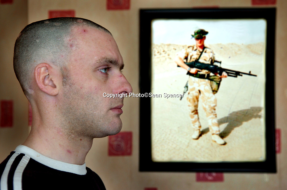 9 March 2007: Tony Bradshaw (23) from Brough, East Yorkshire, who served in Iraq with the army and who now suffers from a form of Gulf War Syndrome.<br /> attention: Ray Wells, Sunday Times picture desk<br /> Picture:Sean Spencer/Hull News & Pictures 01482 210267/07976 433960<br /> High resolution picture library at http://www.hullnews.co.uk<br /> ©Sean Spencer/Hull News & Pictures Ltd