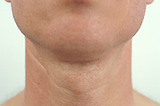 frontal view of man's adam's apple