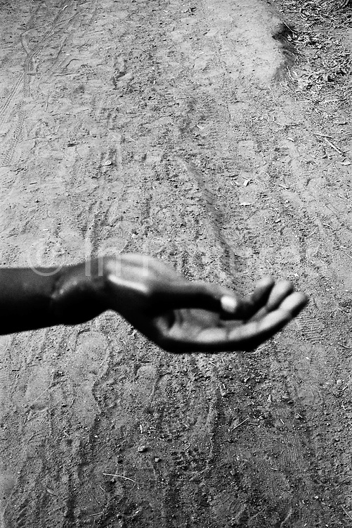 A woman's now uselesss hand.?ÄúThey couldn?Äôt cut it off...?Äù Makeni, Sierra Leone, 2004