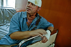 A man is treated at the Al Kindy Hospital for injuries sustained while working at the UN base inside the Canal Hotel where a cement truck packed with explosives detonated outside the offices killing 20 people and devastating the facility in Baghdad, Iraq on Aug. 19, 2003. This was an unprecedented suicide attack against the world body with at least 100 people wounded.