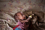 A malnourished child is lying on a bed inside a feeding centre run by UNICEF in the town Shivpuri, Madhya Pradesh, India.