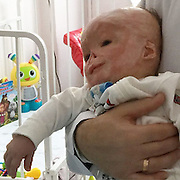 """Baby who suffered 75% burns goes on first holiday to celebrate birthday<br /> <br /> A brave toddler abandoned by his mother after he suffered horrific 75 per cent burns now splashes on the beach -  for his first ever holiday.<br /> <br /> Matveiko Zakharenko - or Matthew - was being treated for jaundice when the bungling nurse left the room with a nappy covering the light therapy lamp causing it to explode.<br /> <br /> Matthew suffered severe 75 per cent burns and 15 per cent internal organ burns that left his tiny body wrapped in bandages at the hospital in Tula, Russia, in November 2014.<br /> <br /> Horrified mother Ekaterina Zakharenko, then just 19, gave him up after the accident when she was told he would need decades of skin grafts, surgery and care.<br /> <br /> But after a lengthy legal battle families vying to adopt the brave tot - who even won the heart of president Vladimir Putin - he is now settled in a new home and celebrated his second birthday.<br /> <br /> Heart-warming footage shows Matthew - affectionately knows as Matvey or Matty - laughing as he splashes around with his adopted older brother in a paddling pool filled with sea water.<br /> <br /> His new mother Svetlana, whose full identity and location is protected due to the sensitivity of the case, said she feels like Matthew has always been part of the family.<br /> <br /> She said: """"This was Matveiko's first time swimming in the sea and flying on an airplane. <br /> <br /> ''He made new friends. On vacation we all learned that he was a general favorite. He loves to travel, he enjoys sitting down in a child seat car and looking out the window to watch the landscapes. <br /> <br /> ''We have consulted different specialists and the forecasts give him good health and los of hope for his rehabilitation. All planned operations will begin in the autumn next year. He is the most beautiful, most intelligent boy you could wish for. <br /> <br /> ''My dream is to hear his first word and see his first"""