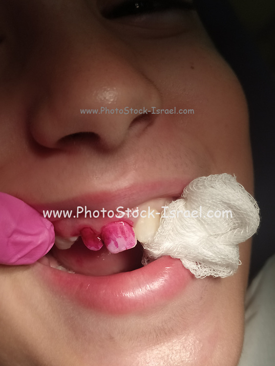 A young female patient being treated by a dental hygienist teeth being polished Model release available