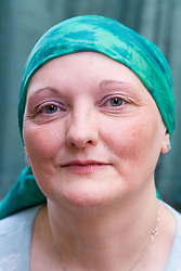 Woman; who has been undergoing Chemotherapy for breast cancer; wearing a silk scarf to cover up hair loss as a result of the treatment,