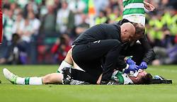Celtic's Kieran Tierney receives treatment for a facial injury before being substituted during the William Hill Scottish Cup final at Hampden Park, Glasgow.