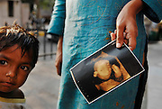 """Lost Daughters: Sex Selection in India"" <br /> <br /> The social perception that females are ""worth"" less than males, and the extremes to which families go to have boys and get rid of girls. Through her images Mary shows us the difficulties that women face in India, even before birth, such as fetal sex selection, government-financed abortion of female fetuses and abandonment after birth. But her work doesn't stop there; she follows women through their life cycle and shows the consequences of this sexist ideology.<br /> <br /> Women are an endangered species in India. 'Raising a daughter,' said an old Punjabi saying, 'is like watering your neighbor's garden.' In the last 20 years India has lost about 10 million girls to sex selection. Due to the devaluation of women and expensive dowries required by the groom's family, women are holding out for boy children. Sons are preferred in India because boys will be more prosperous and take care of their aging parents. They carry on the family name and are the ones to inherit family wealth. Girls are seen as a drain on family resources. Many women rely on illegal ultrasounds to determine sex, leading to the aborting of girl fetuses. The long-term effects are coming to fruition. Despite its status as one of the world's largest democracies, India is a country where women suffer a low status. <br /> <br /> Photo shows: - A woman holds an ultrsound print-out of a fetus. The Indian government can only monitor the 25,770 officially registered ultrasound machines. There are actually anywhere from 70,000, to 100,000 of them, according to the British Medical Journal.<br /> ©Mary F. Calvert/Exclusivepix media"
