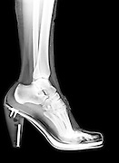 X-Ray of a foot and ankle in a high heel shoe